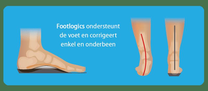 Corrigerende-werking-van-Footlogics-steunzolen