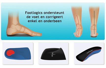 http://footlogics.nl/wp-content/uploads/2014/03/kids-steunzolen.jpg