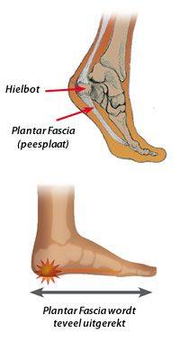 spier onder voet doet pijn