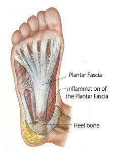 oorzaak vocht in benen en voeten