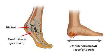 Symptomen peesontsteking voet