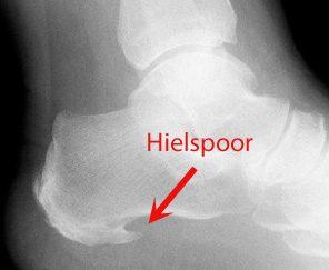 hielspoor röntgenfoto
