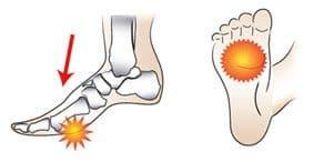 metatarsalgie-pijn-bal-voet