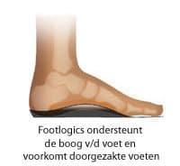 footlogics voorkomt doorgezakte voeten