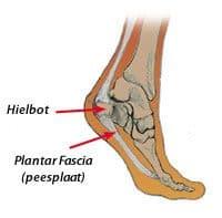 pijn onder voet zijkant
