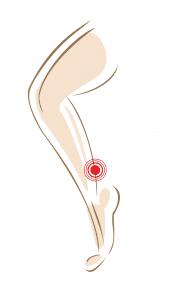 Achillespeesklachten