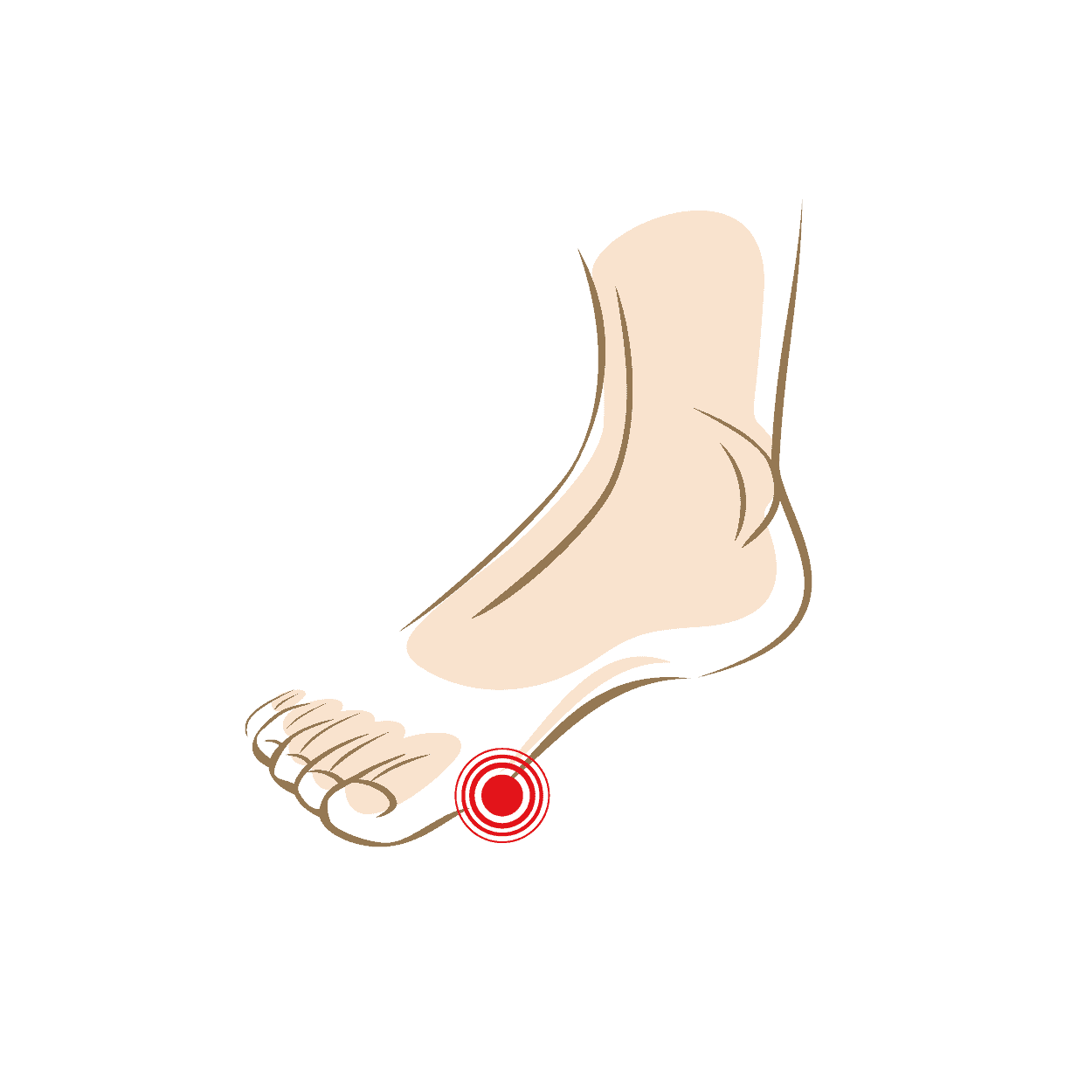 pijn onder voet achter tenen